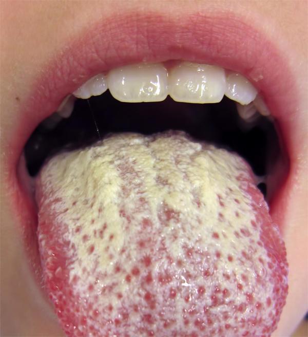 Борная кислота для лечения кандидоза