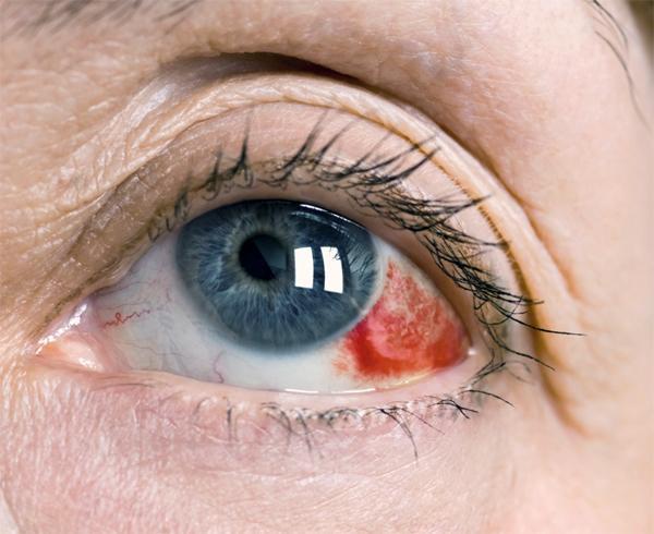 Что делать, если лопнул сосуд в глазу