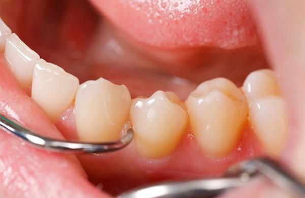 Причины образования и способы удаления зубного камня