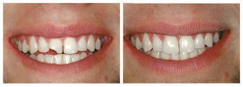 Реставрация зубов позволит устранить многие дефекты