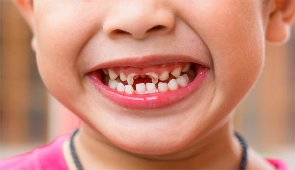 Способен ли фторид предотвращать зубной кариес?