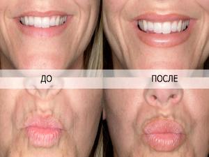 Придать форму, цвет, увеличить губы Вам помогут в клинике Ольги Игнатьевой Esthetic clinic