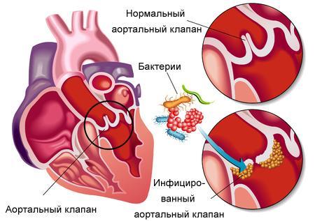 Что такое эндокардит?