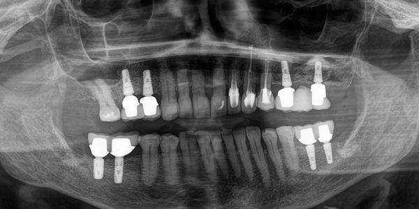 Зубная имплантология в Европе