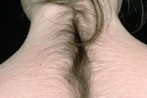 Чем вызван чрезмерный рост волос у женщин?