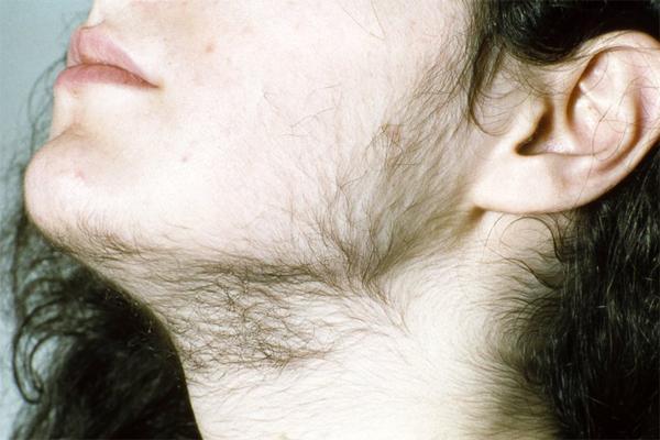 Почему у женщин начинают расти лишние волосы?