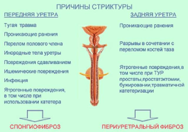 Чем опасна стриктура уретры и как лечат патологию