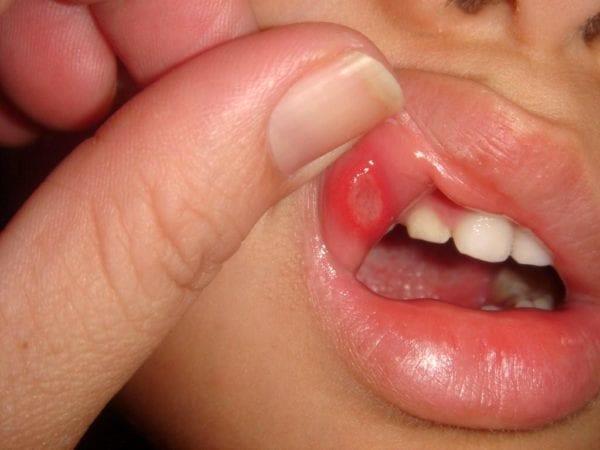 Способы лечения стоматита в домашних условиях