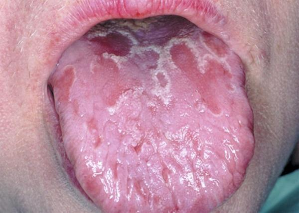 Гингивостоматит