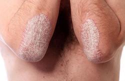 Как проявляется грибковая инфекция?