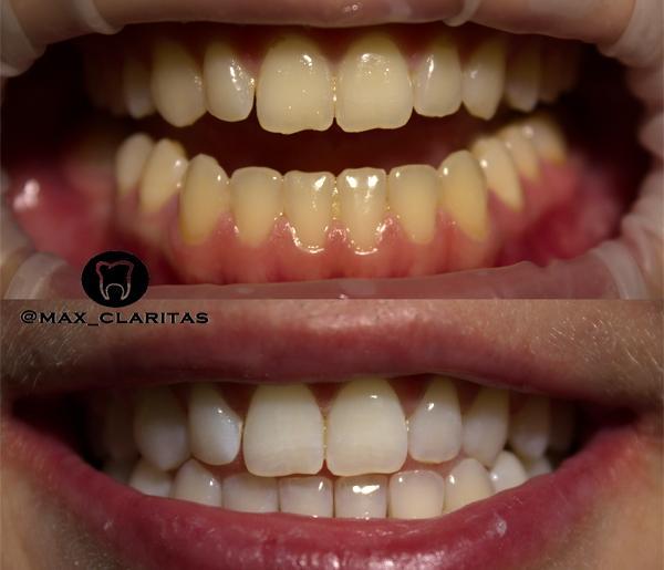 Отбеливание зубов зум 4