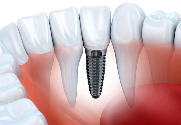 Почему не приживаются зубные имплантаты?