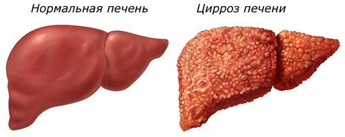 Что вызывает боли в печени