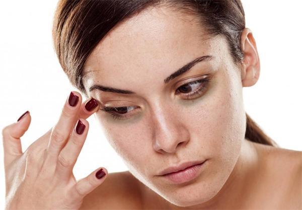 Как курение вызывает синяки под глазами?