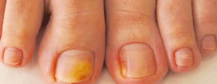 Эффективные средства против грибка ногтя