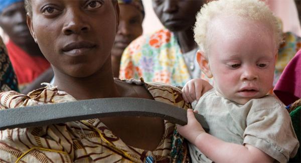 Почему возникает альбинизм
