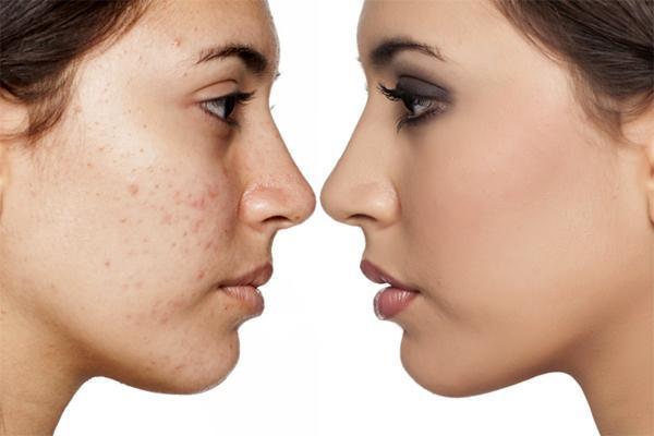 Термолифтинг – современный метод омоложения кожи
