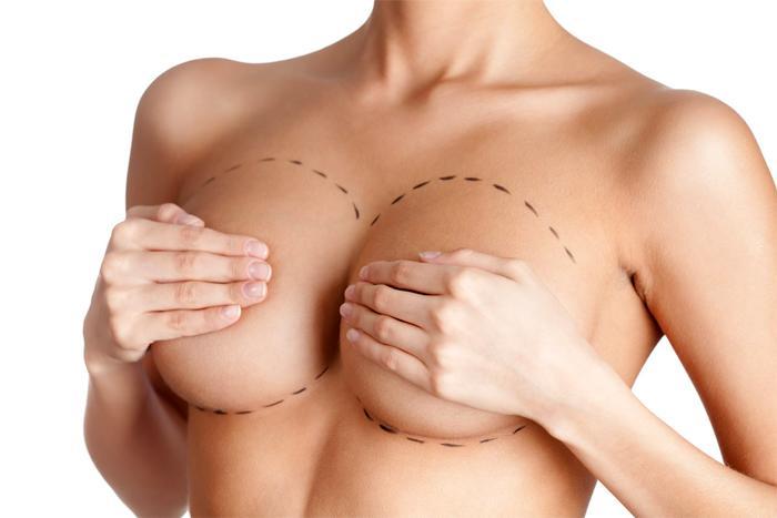 Большая грудь — женская мечта