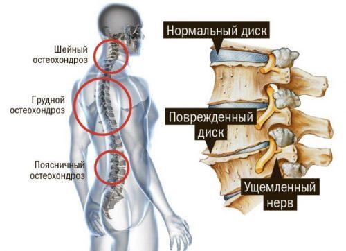 Всё об остеохондрозе - ortocure.ru