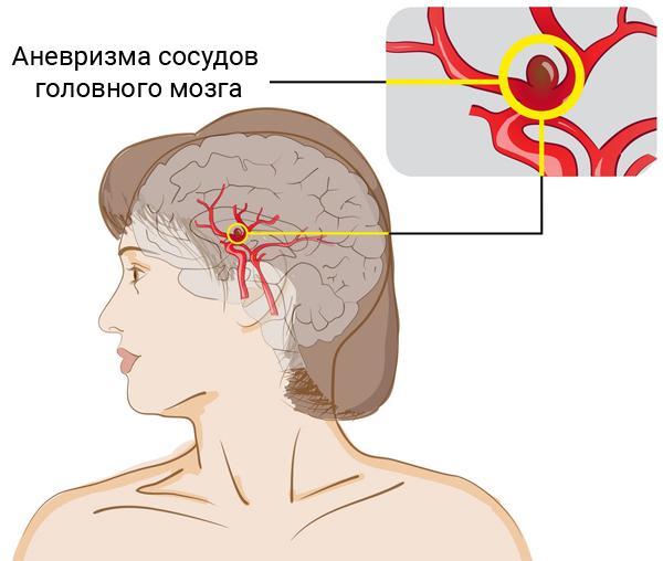Что нужно знать об аневризме сосудов головного мозга