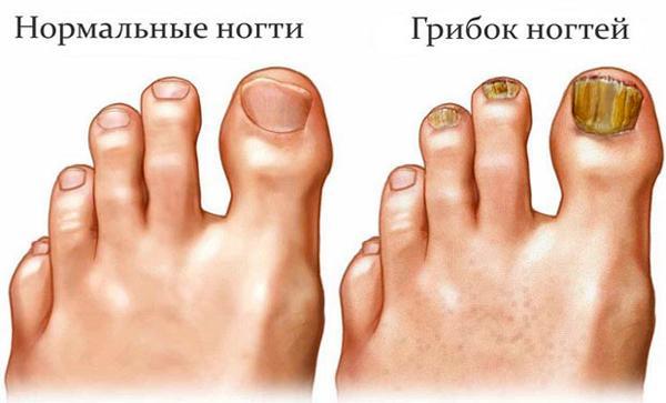 Что нужно знать о грибке стопы и ногтей?