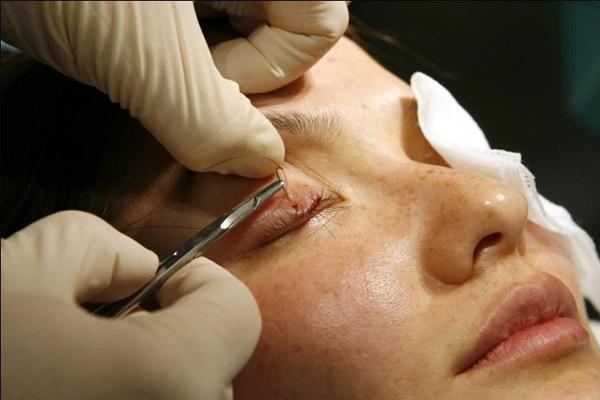 Как проводится имплантация ресниц