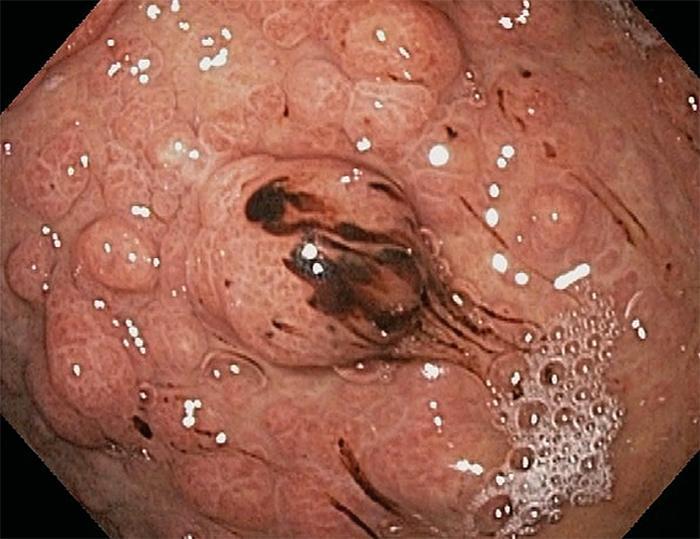 Что нужно знать о полипах в желудке?