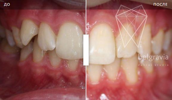 Лечение и пломбирование каналов зуба