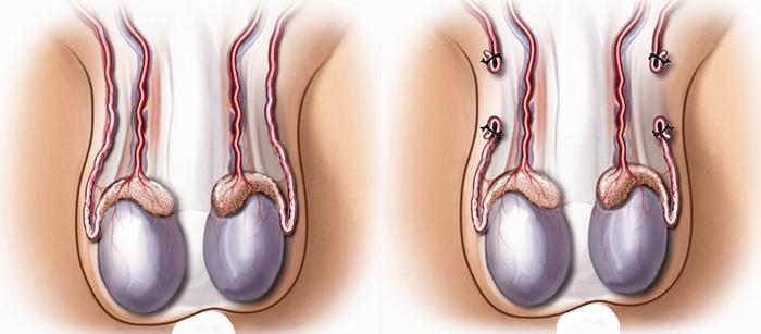Как проводится вазэктомия?