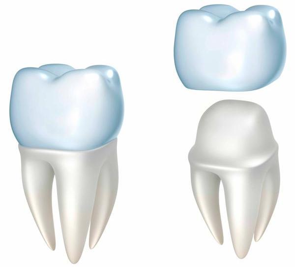 Зубные коронки - lapchenko.clinic