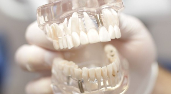 Стоматологическая клиника НАВА: особенности и преимущества
