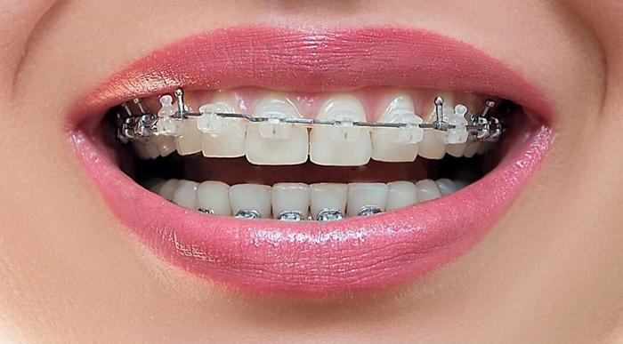 Методы выравнивания зубов