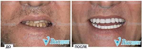 Стоматология в Минске - viodent.by