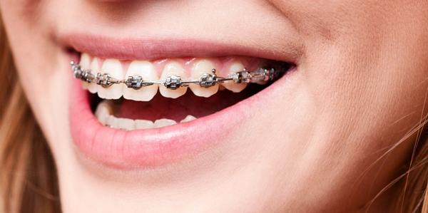 Брекеты на зубы и профессиональная чистка: так возвращается красивая улыбка