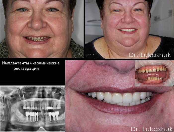 Зубные импланты в Киеве в стоматологии Лукашука