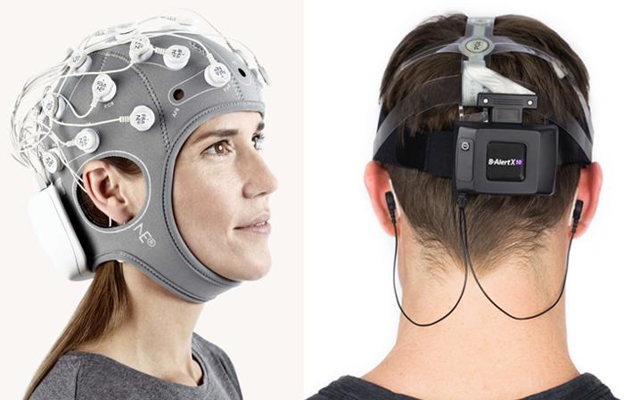 ЭЭГ головного мозга: куда обращаться?