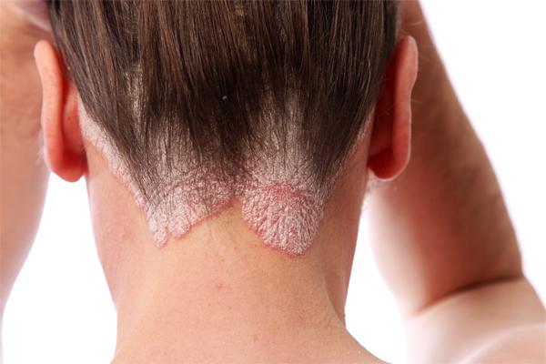Как связаны атопический дерматит и псориаз?