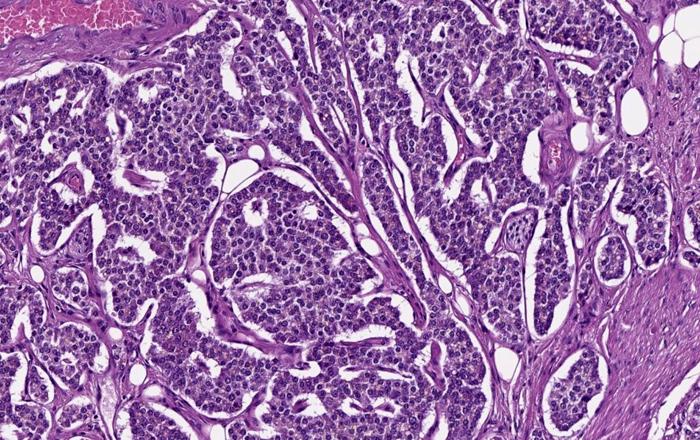 Лютеций-177 (Lu177) для борьбы с нейроэндокринными опухолями