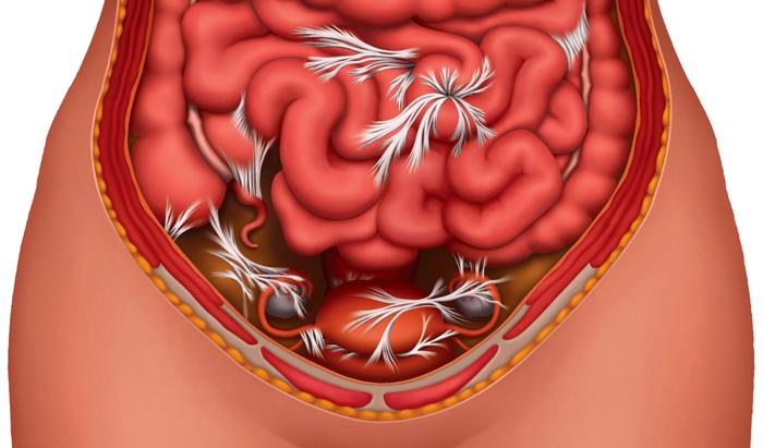 Внутренняя рубцовая ткань