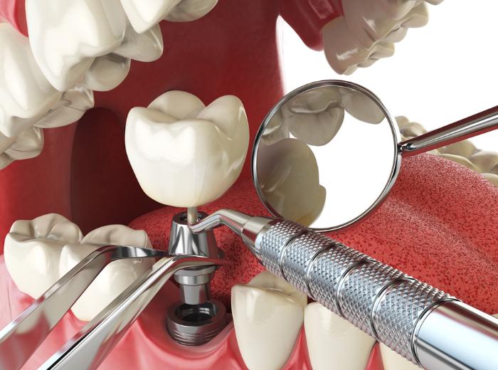 Имплантация зубов: показания и специфика