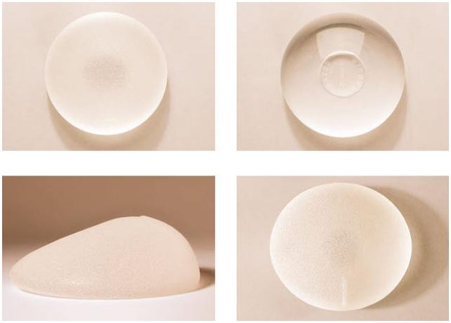 ТОП-10 вопросов о грудных имплантах – мнения экспертов и врачей