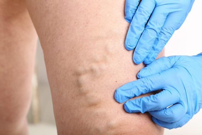 Варикоз вен на ногах: причины, симптомы, лечение
