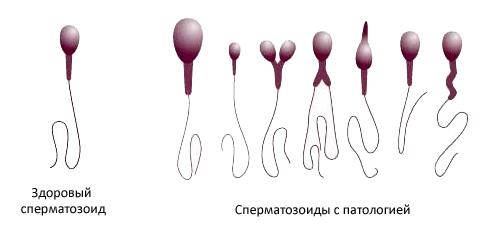 Как восстановить сперму